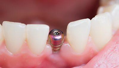 دوره جامع آموزش ایمپلنت های دندانی مقدماتی