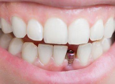 دوره جامع آموزش ایمپلنت های دندانی (پیشرفته)