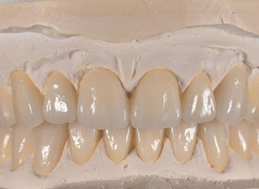 آشنایی با مراحل ساخت پروتزهای دندانی( ویژه لابراتورها)